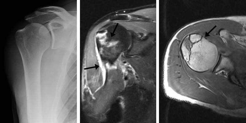 Røntgen og MR-scanning af skulder