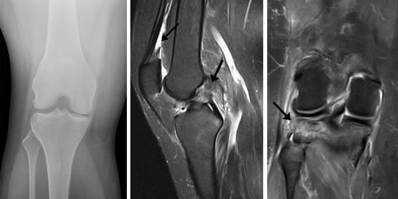 Røntgen og MR-scanning af knæ